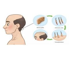 London hair transplant